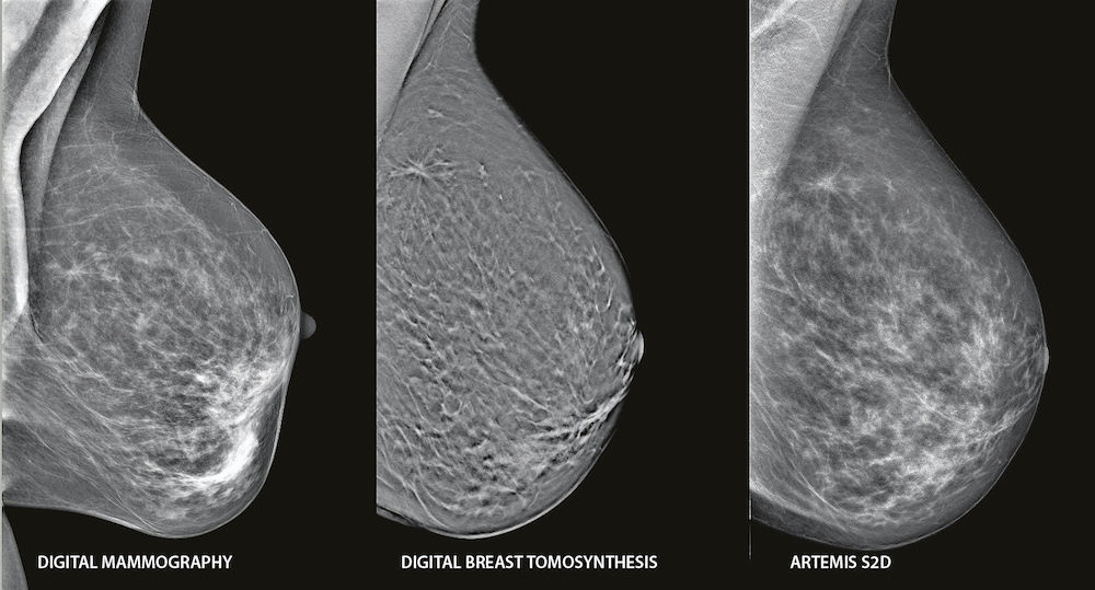 Томосинтез груди
