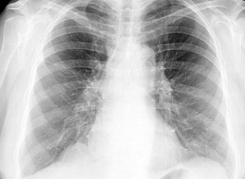 3D-биоинженерия против болезней легких