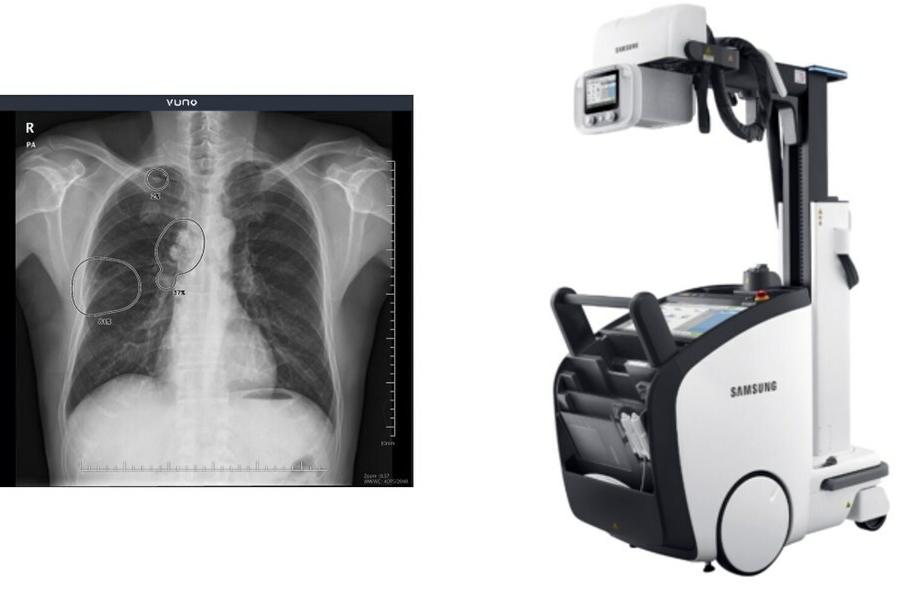 Решение для диагностики грудной клетки от Samsung